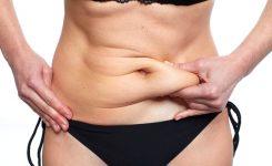 Tratamentos estéticos que podem melhorar a flacidez